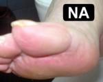 Pedicurebehandeling Voor en Na 0004